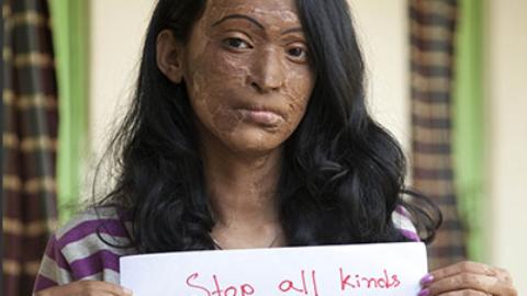 """Un """"nuovo"""" elemento per cancellare un'identità: l'acido. In Italia e nel mondo oggi, i casi di donne sfigurate dall'acido sta aumentando. Come bloccare quest'orrore?"""